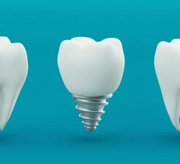 Dental Implant Procedure-The Modern Way of Fixing Your Smile